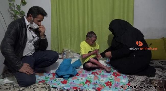 Kelebek hastası Suriyeli Alaattin'in yaşam savaşı