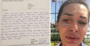 Üniversite öğrencisi şort giydiği için yurtta uyarıldığını iddia etti