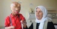 Yanık tedavisi gören Serkan ve Firdevs'e yardım yağıyor